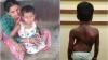 9 வயது பெண் குழந்தைக்கு முதுகெலும்பு பிரச்சினை.. நீங்கள் நினைத்தால் உதவலாம்