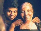 ஆசிட் வீச்சில் பாதிக்கப்பட்ட பெண்.. கரம்பிடித்த மருத்துவ பணியாளர்.. ஒடிசாவில் ஸ்வீட் காதலர் தினம்