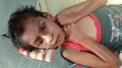 11 வயது ஸ்ரீசரண்.. பறிபோன கண்.. முடங்கிய கை, கால்கள்.. நிதியுதவி செய்து வாழ்வு அளியுங்களேன்