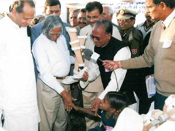 Abdul Kalam was very proud of making Lightweight calipers for polio patients