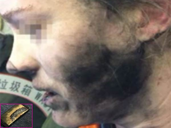 Headphone Batteries Explode On Flight: Woman suffers burns