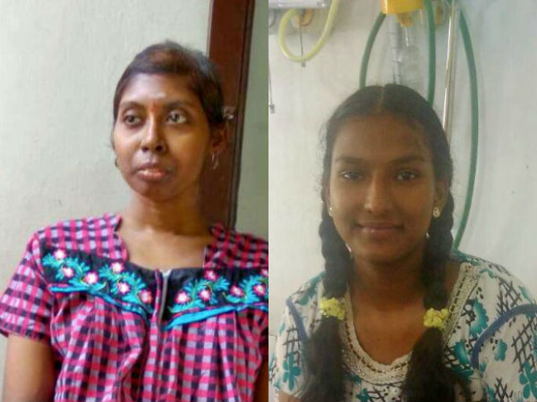 Roshini, Sudhandradevi who were affected by Cancer seeks help for treatment through crowdfunding