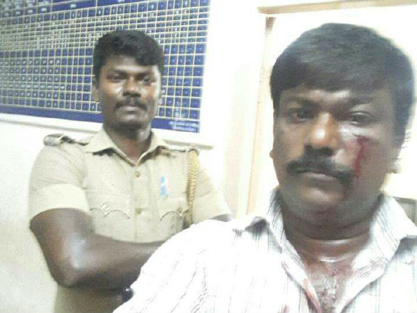 Madras HC agrees to treat police officer's assault on advocate as suo-motu PIL