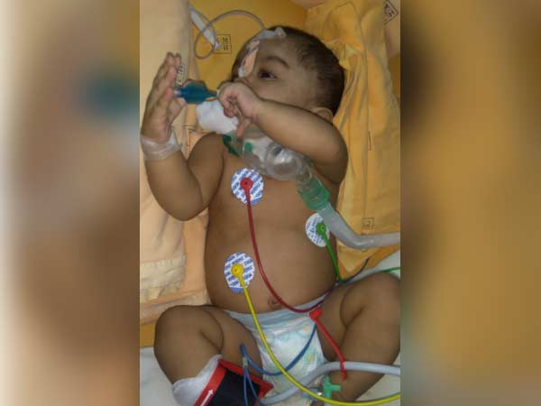 Even after 3 surgeries, this 1-year-old struggles for each breath