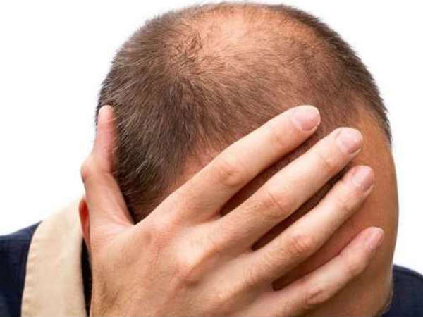 hair loss is a very common condition and affects most people at some time in their lives