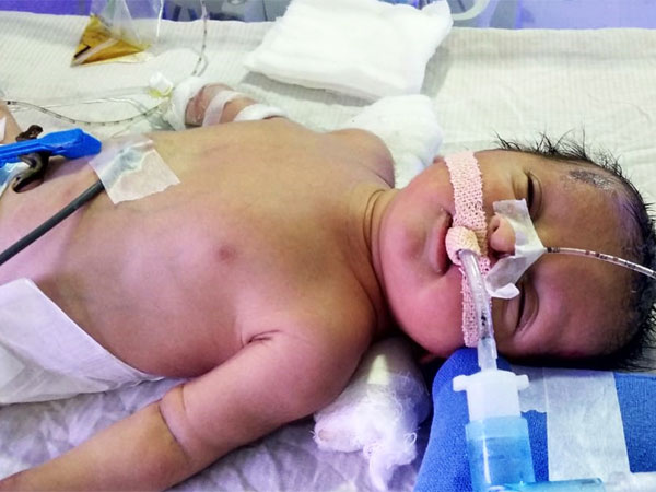 Help Lakshmi In Saving Her Newborn!
