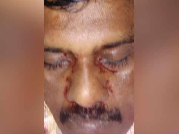 மதுரையில்... 43 வயது செளந்தரபாண்டி.. பிரபல ரவுடி.. தலை துண்டாக வெட்டி கொலை!