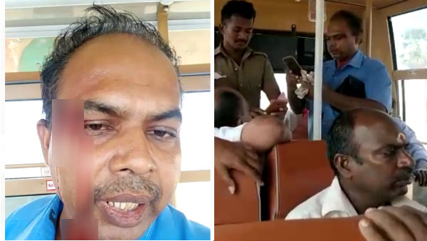 Police attack on bus conductor: Human rights commission sent notice
