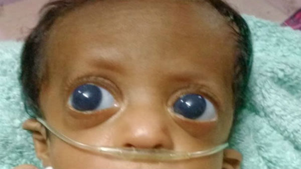 Help to save my 6 month old Baby From Glaucoma