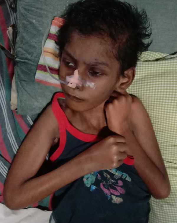 Small boy affected with Adrelo leuko dystrophy issue, need financial help