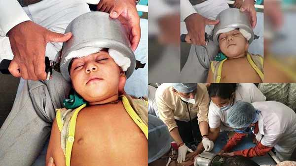 baby head gets stuck in the cooker near gujarat