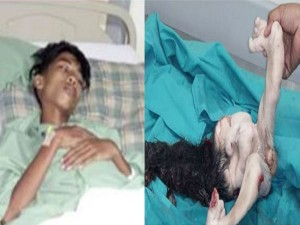 Malaysian Boy Has Unborn Twin His Stomach 15 Years