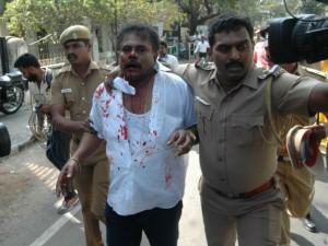 Sasikala Pushba S Husband Lingeswaran Had Been Under Arrest