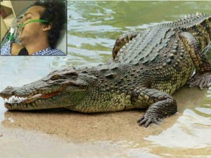 Crocodile Attack Victim Young Start Up Entrepreuner Mudit