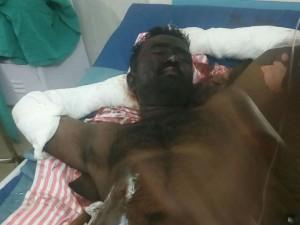 Bakkary Fire Accident Minister Vijayabaskar Visits Hospital
