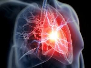 Heart Attacks Diseases Reasons Horoscope