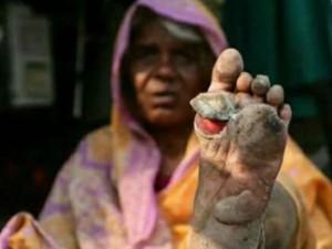 Bleeding Blistered Feet Wins Victory Maharashtra Farmers