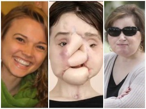 Us Woman Who Shot Herself With Rifle Later She Gets New Face